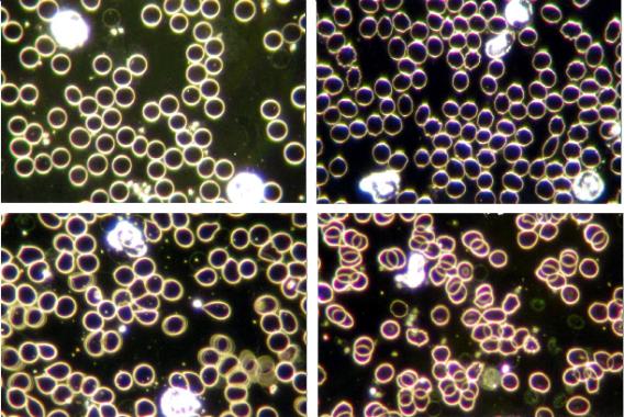 血球画像比較(形状)